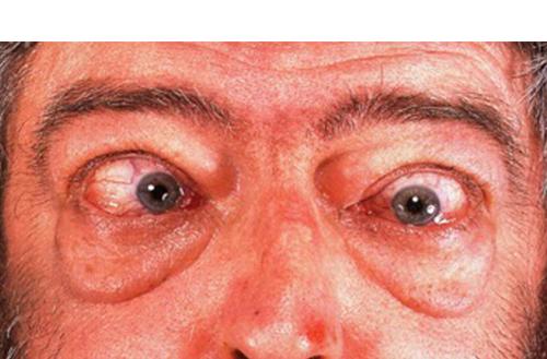 Thyroid Eye Disease Specialist Cedars Sinai Medical Towers Los