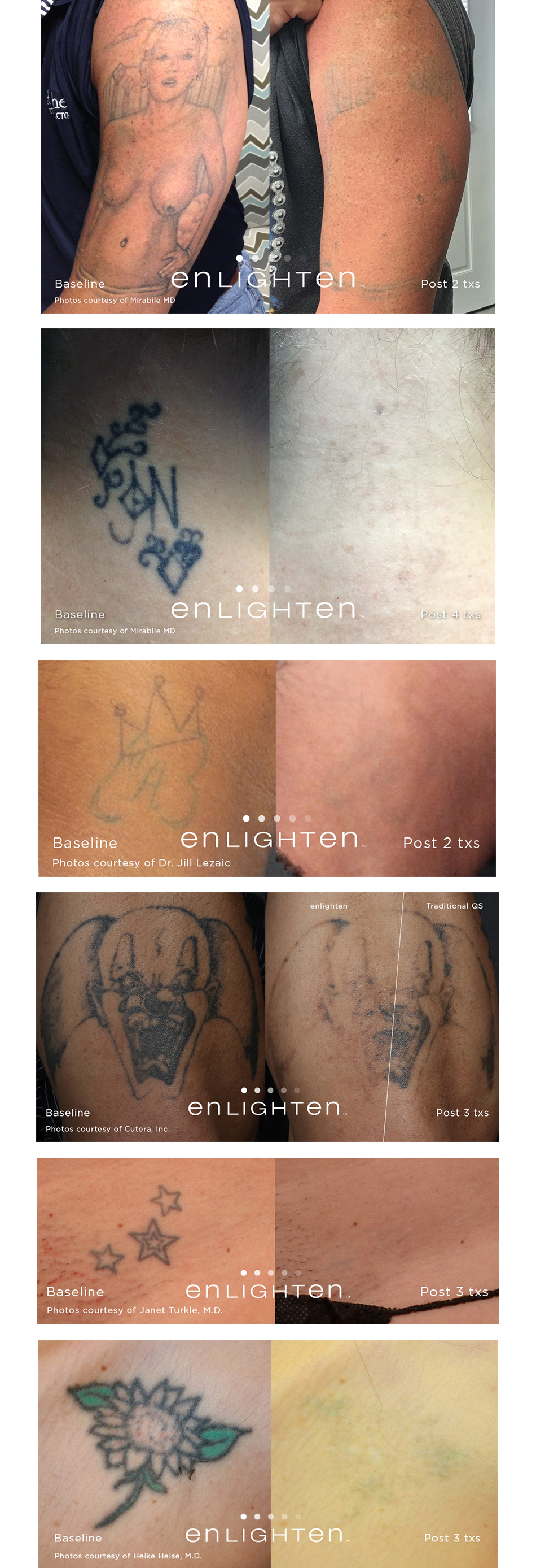 100 shattered ink specialist laser tattoo laser for Best tattoo removal los angeles