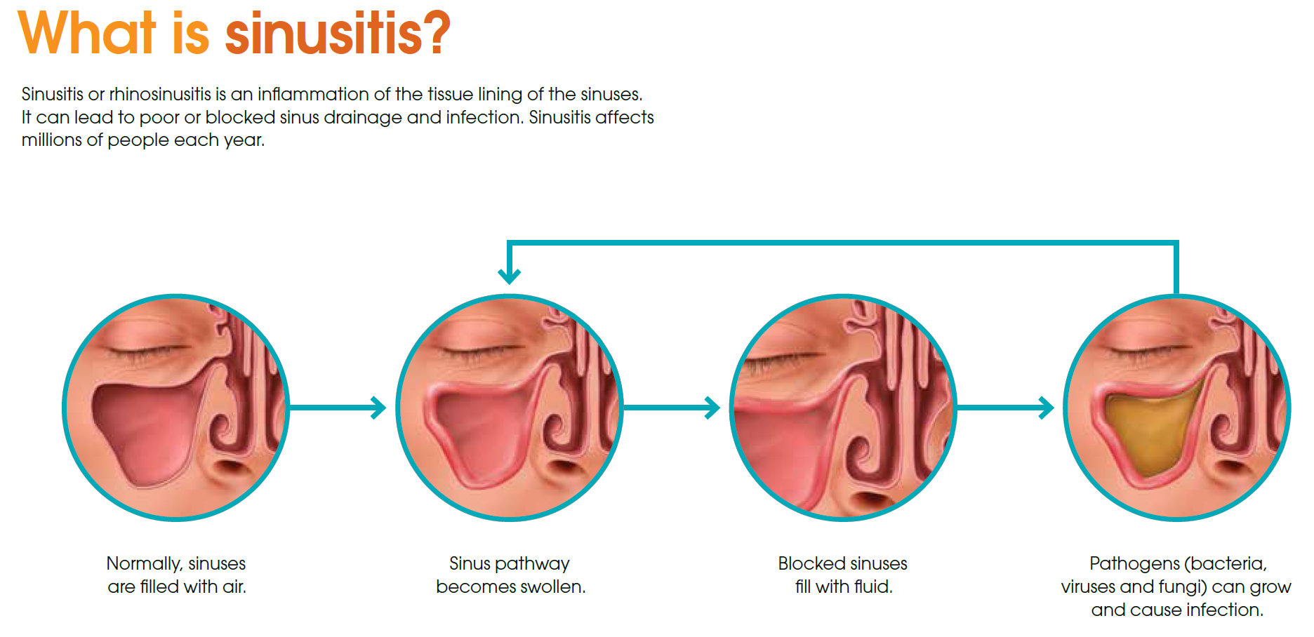 Acute and chronic sinusitis: symptoms 69