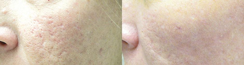 Scar Removal Specialist - Bridgewater, MA: Horizons Health
