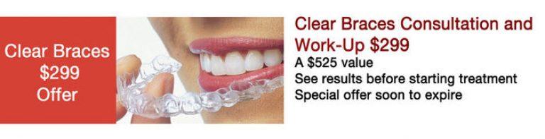 Clear Braces Promo