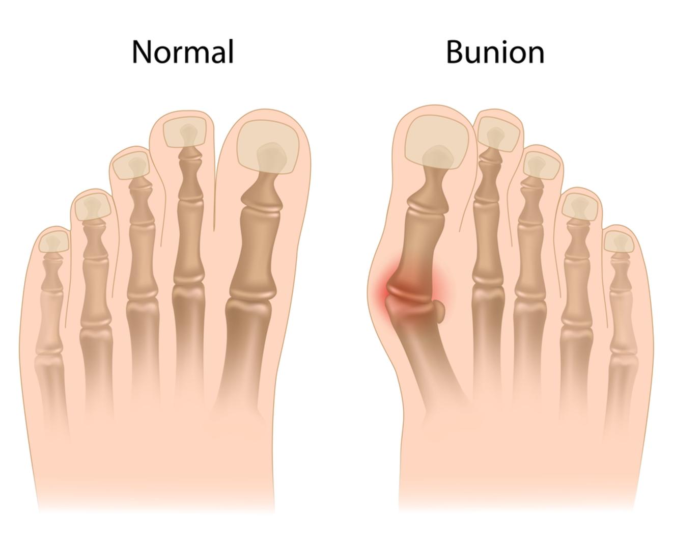 Bunion Surgery Q & A