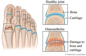 How is arthritis in the foot treated?