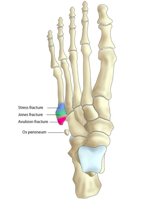 Fractures Specialist - Downtown and Midtown New York, NY: Gotham ...