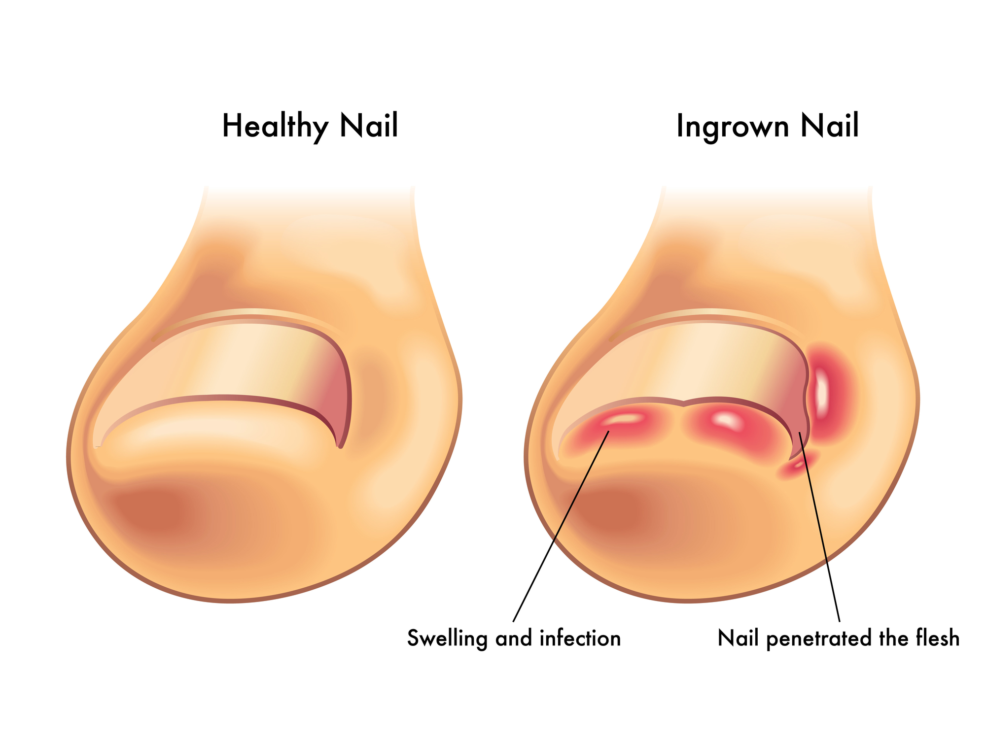 Ingrown Toenail Specialist | Midtown & Downtown, NY
