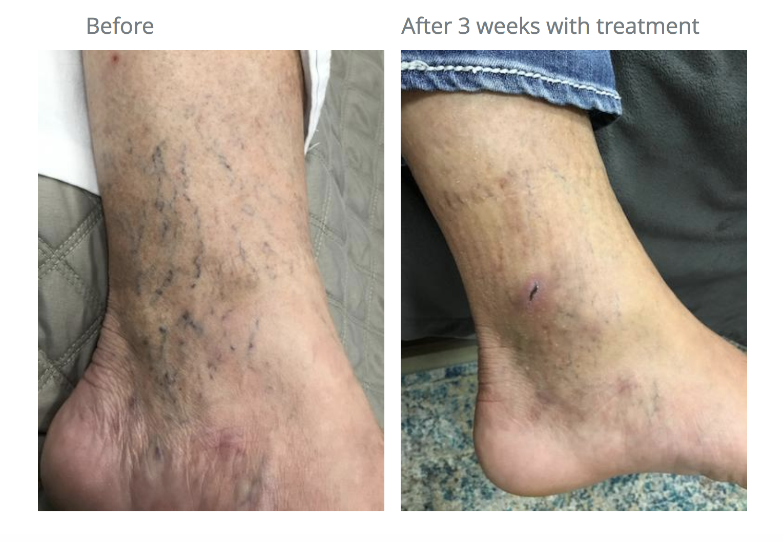 how to remove spider veins