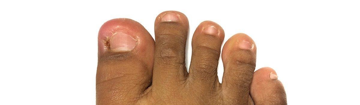 Ingrown Toenail Specialist - Evans, GA: Augusta Foot & Ankle, PC ...
