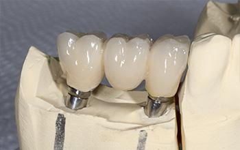Dental Implants Specialist - Bellevue, WA: Whole Body Dental