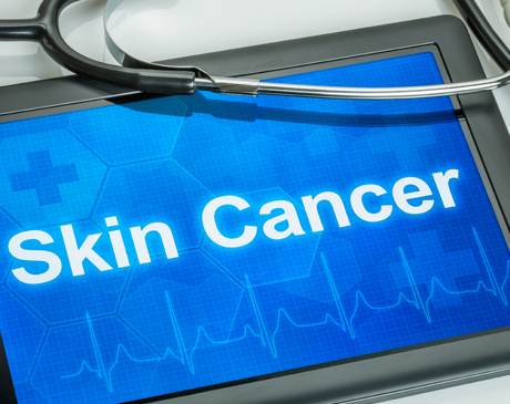 Skin Cancer Surgery Marina Del Rey