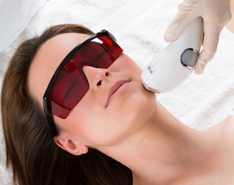 Cosmetic Laser Treatment Marina Del Rey