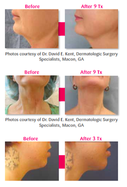 Skin Tightening ReFit Before and after