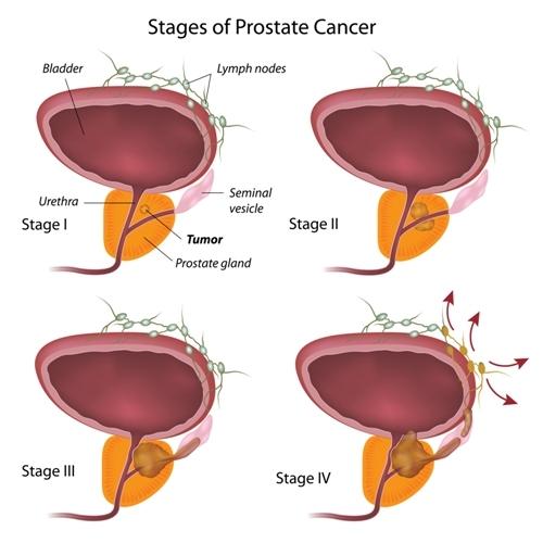 prostatitis weiblich behandlung antibiotika.jpg