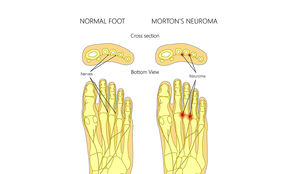 Remedies for Morton\'s Neuroma: Suzanne L. Mancherian, DPM: Podiatrist