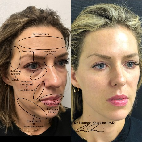 BOTOX® Specialist - Upper East Side New York, NY: Hooman
