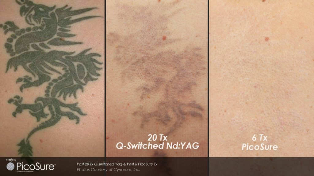 Tattoo Removal Specialists - Anna, Flower Mound, Plano, Prosper