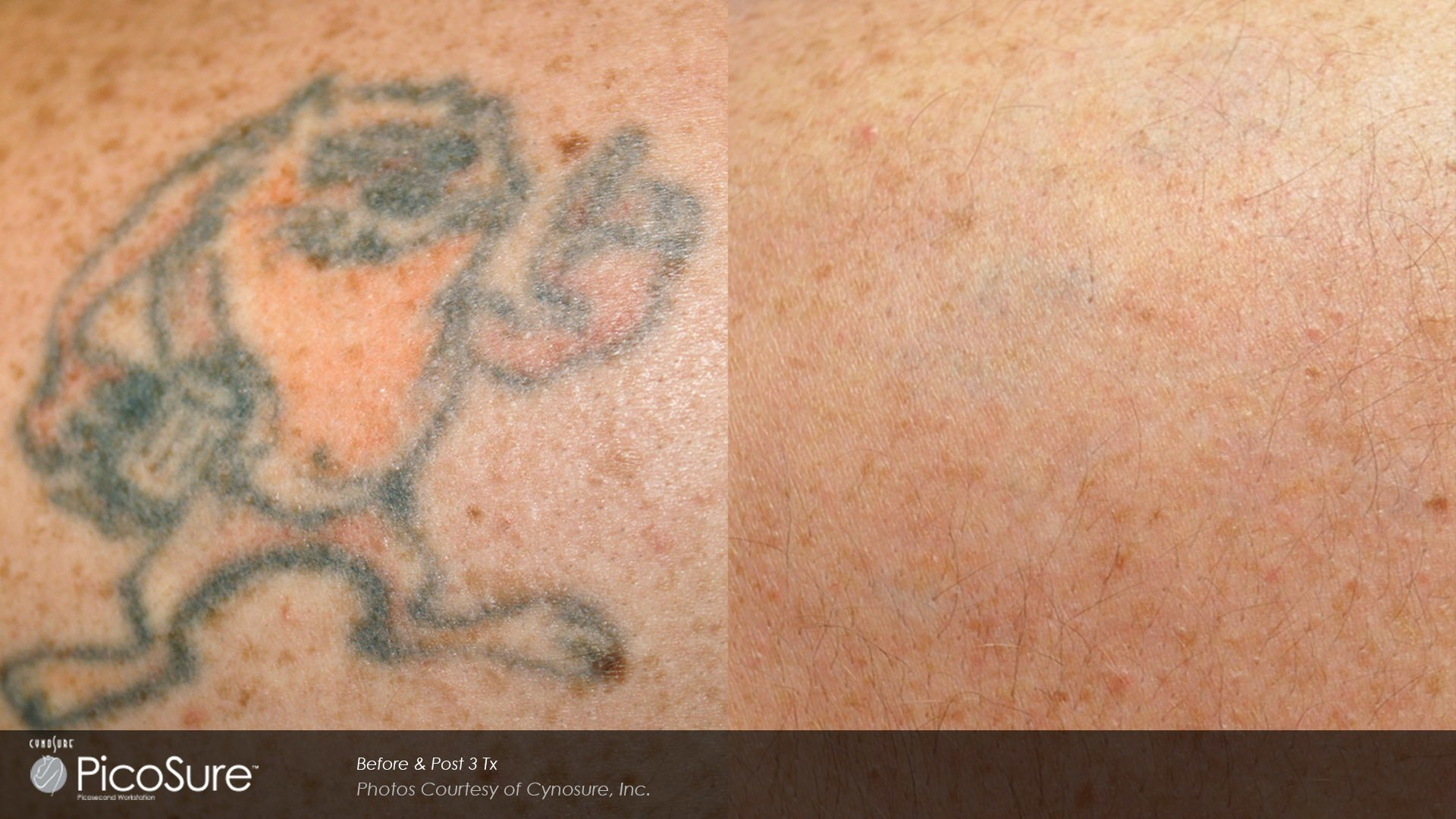 Tattoo Removal Specialists - Anna, Flower Mound, Plano