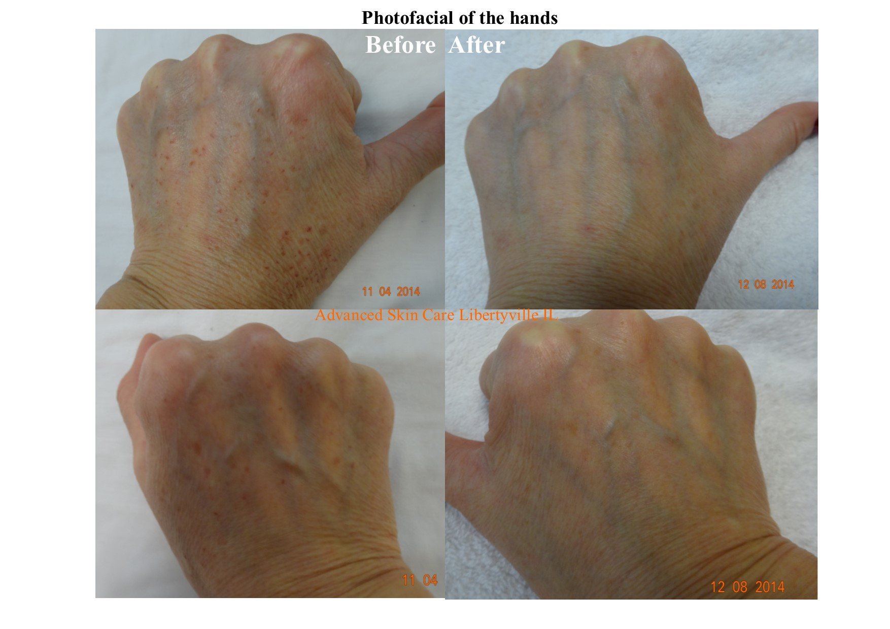 Photofacial before/after on hands