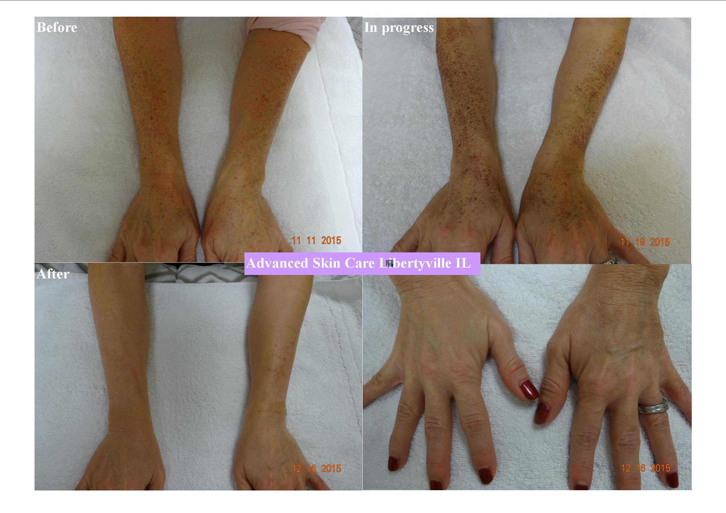 Photofacial before/after on arms