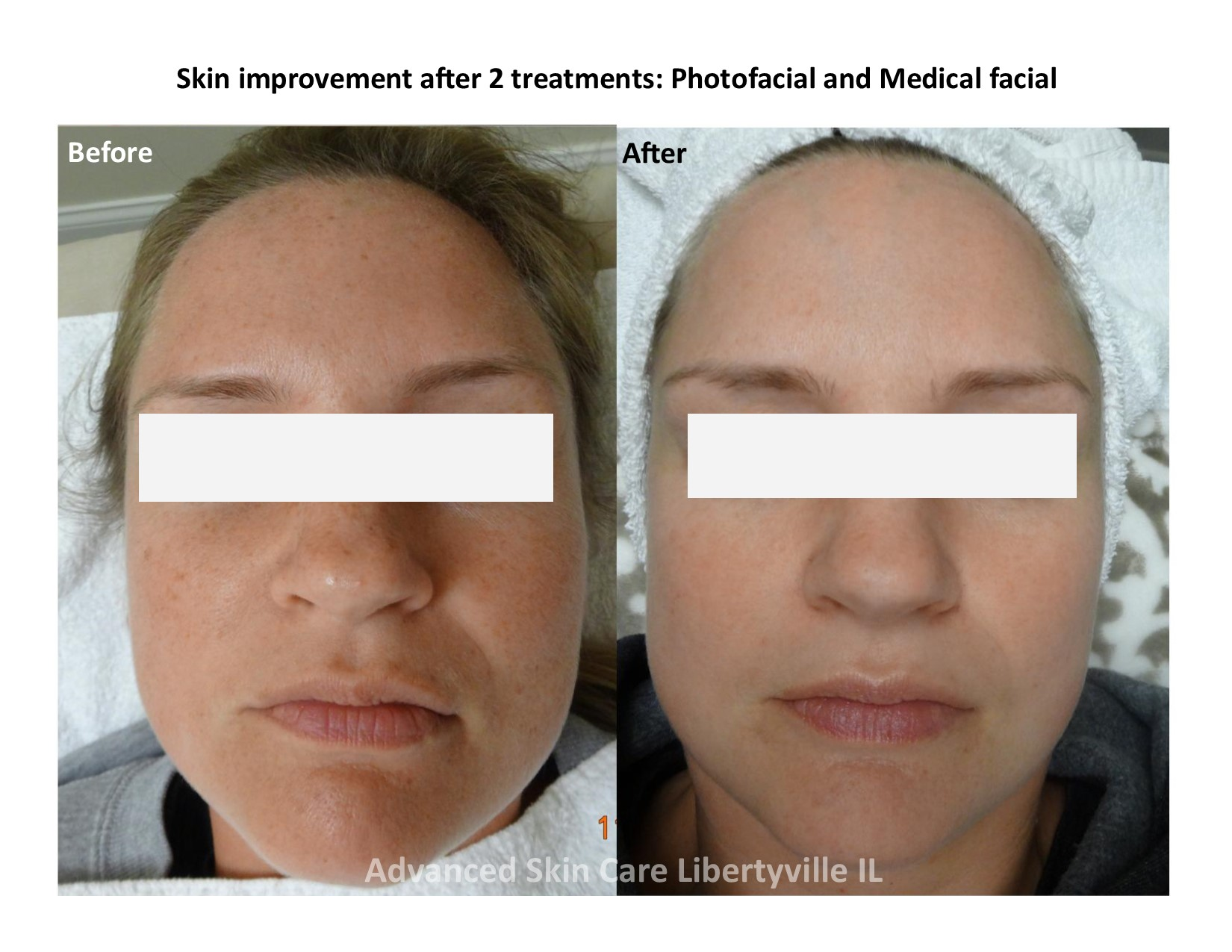 Photofacial before/after on face