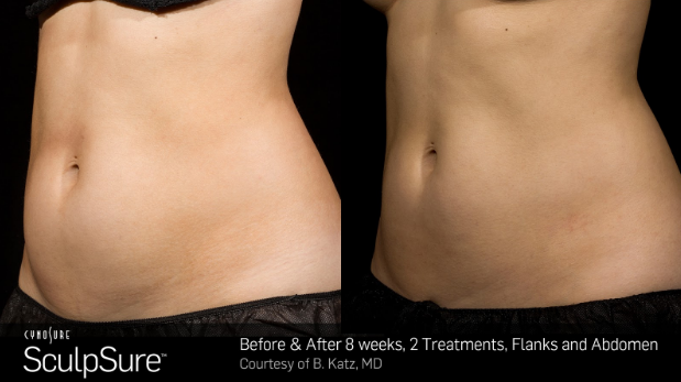 SculpSure Before and After 1