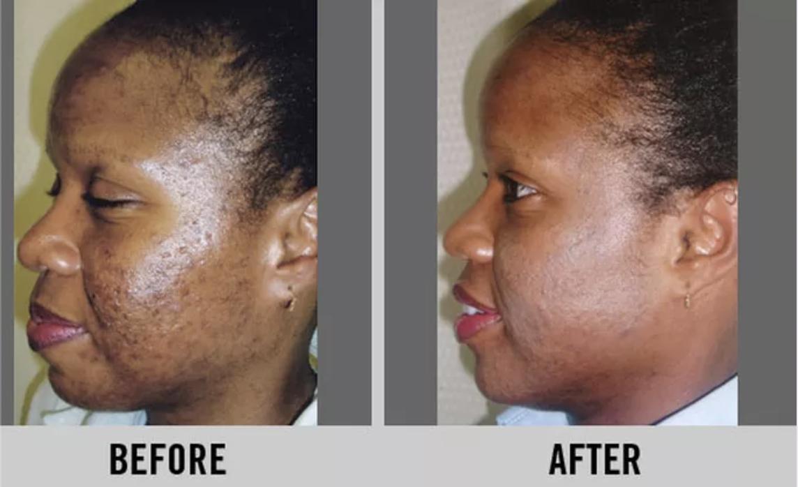 Image result for laser skin resurfacing