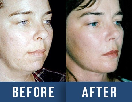 Face before after san francisco ca aesthetic surgery center face and neck lift to restore overall youthful vitality bringing beautiful lift to cheek height while also smoothing jowls and chin with defined contour ccuart Image collections