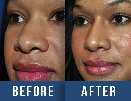 Nose Before & After - San Francisco, CA: : Aesthetic Surgery Center