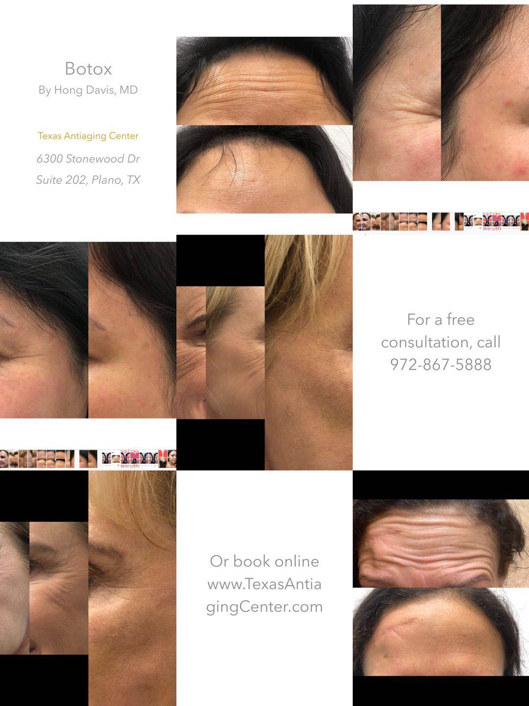 Before and After - Plano, TX: Texas Anti-Aging Medicine Institute