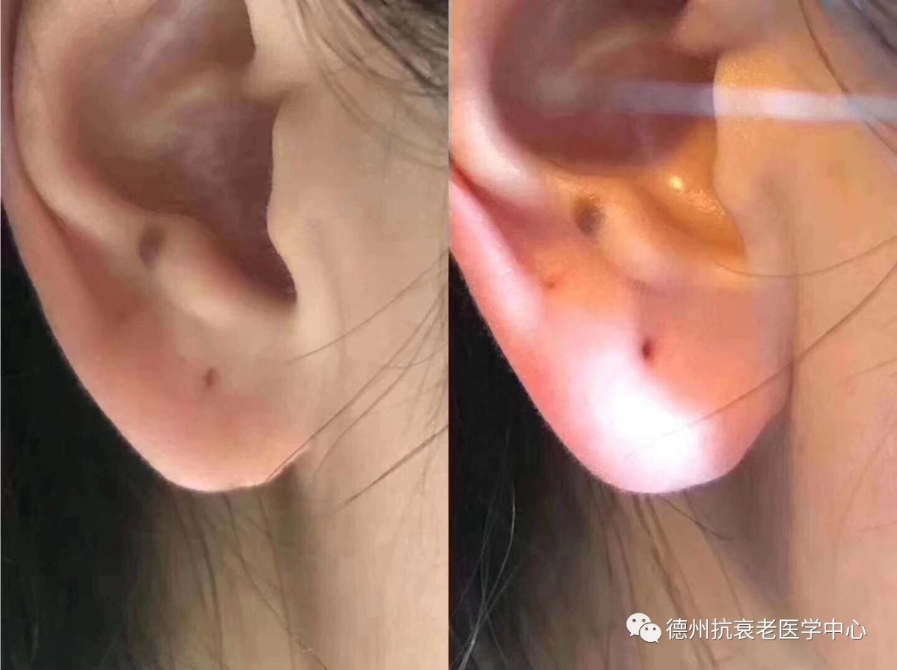 Ear Lobes Before and After
