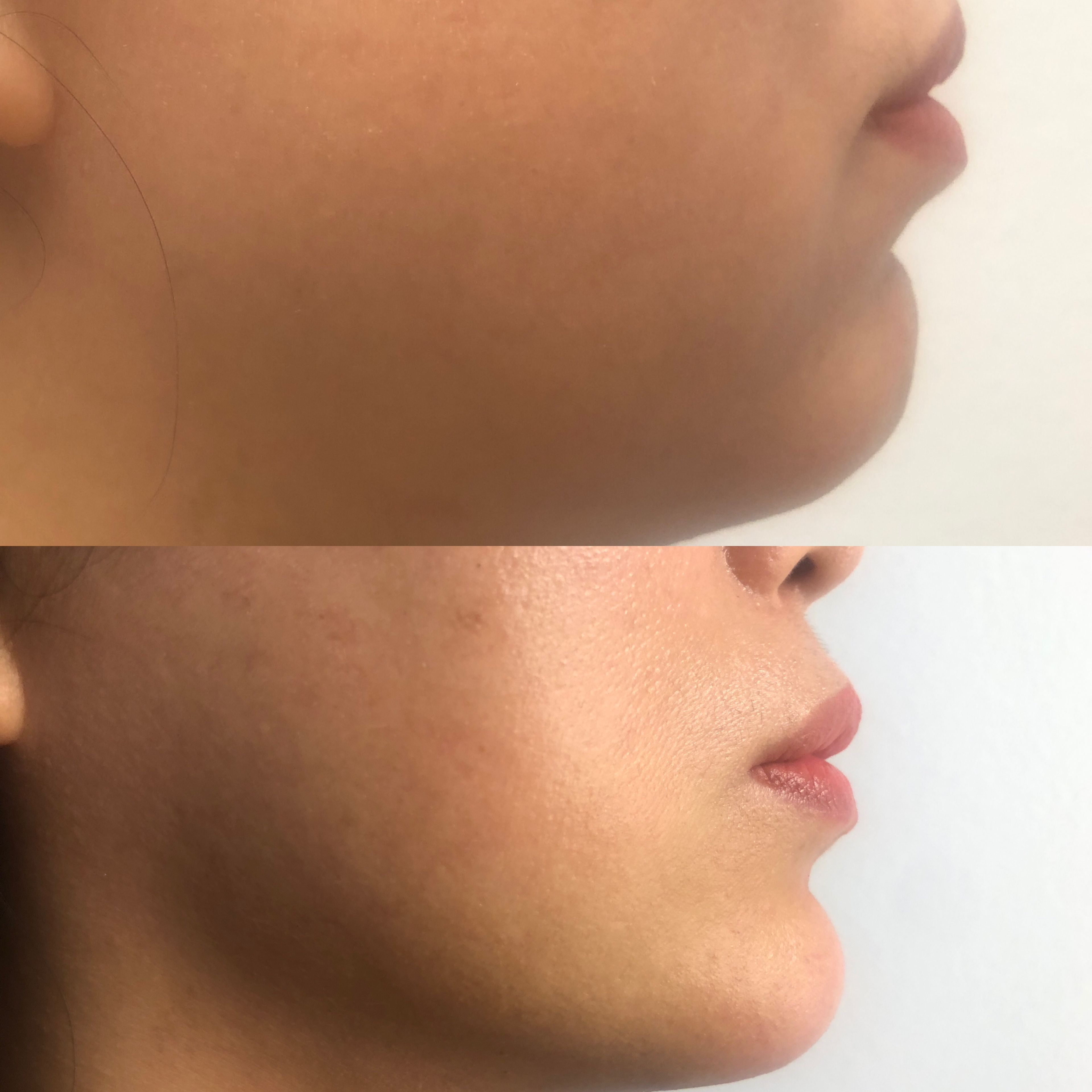 Restylane Chin Before and After