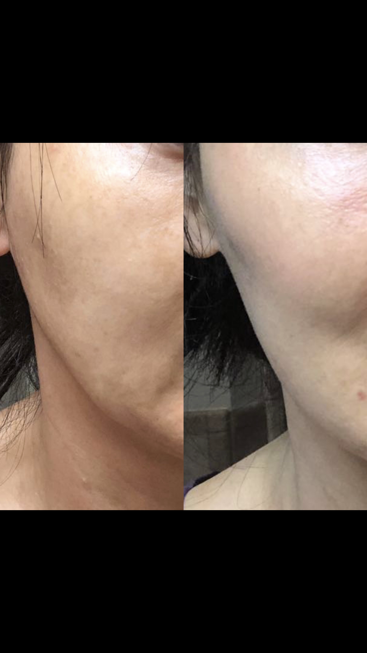 Facial Thread Before and After