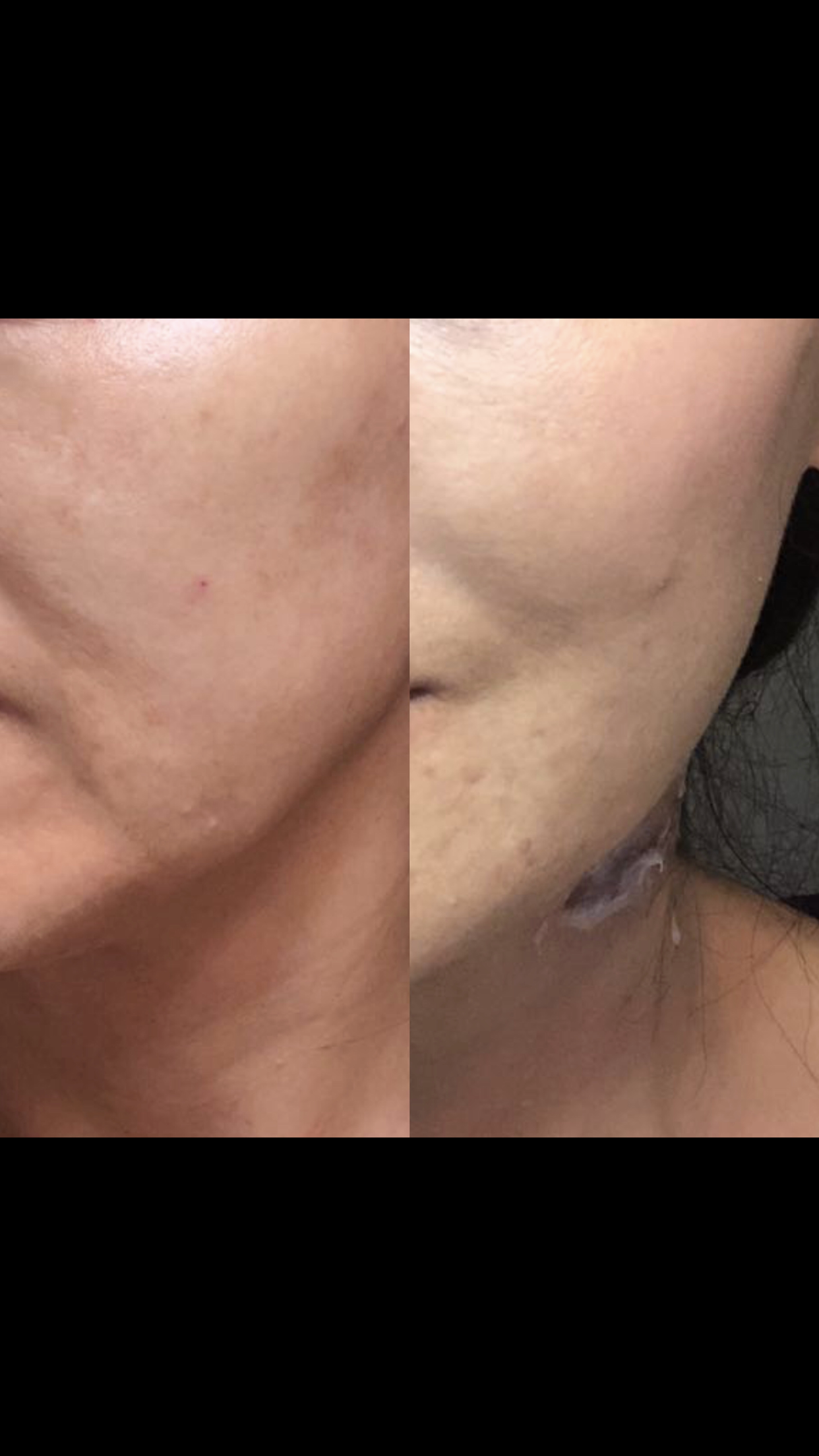 Facial Lift Before and After