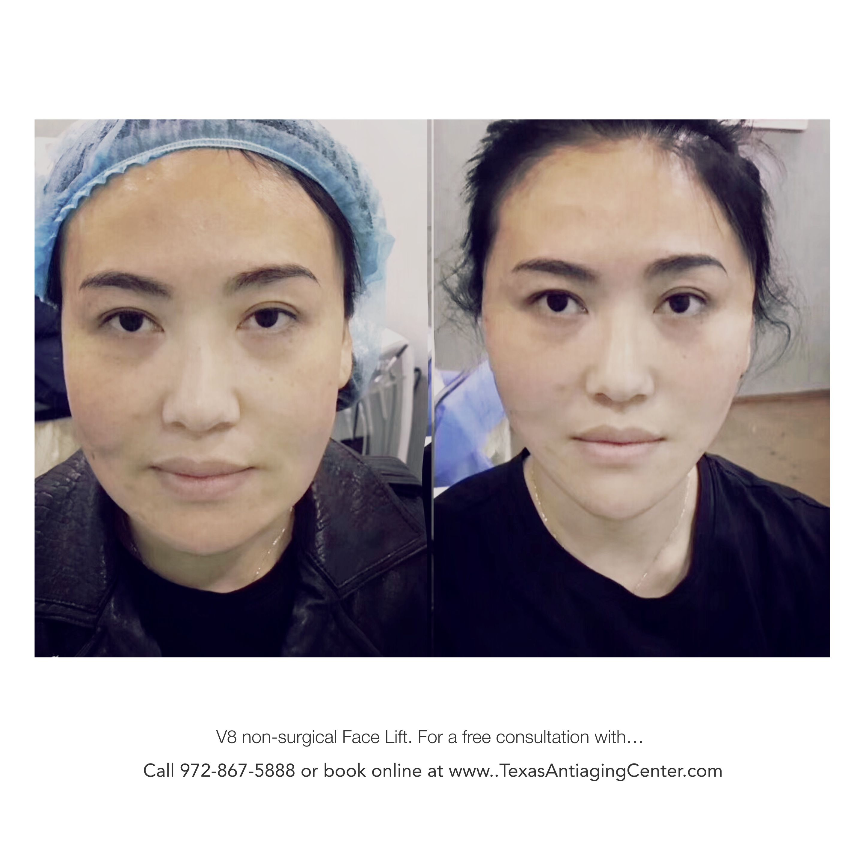 Thread Facial Lift Before and After