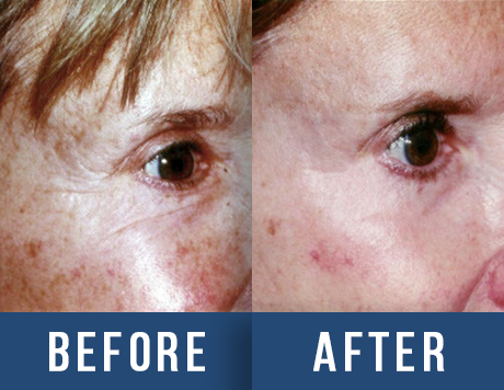 Laser Before & After - San Francisco, CA: Aesthetic Surgery
