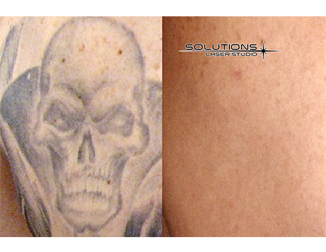 Solutions laser studio medical spa naperville il for Laser tattoo removal chicago