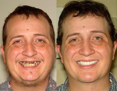 Extreme Makeover Smiles - Encino, CA