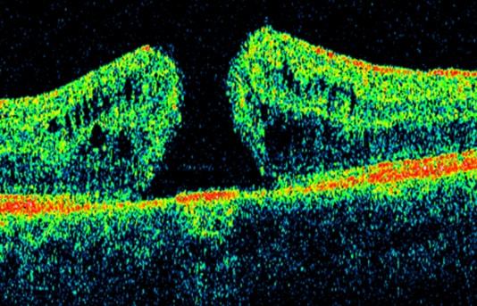 retina sunnyvale