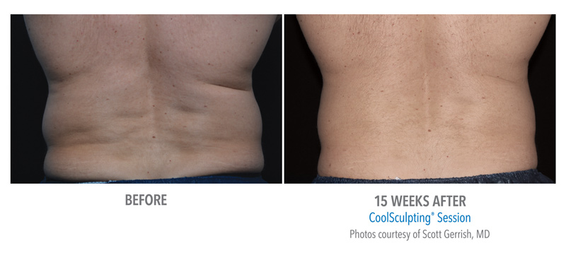 body contouring, coolsculpting