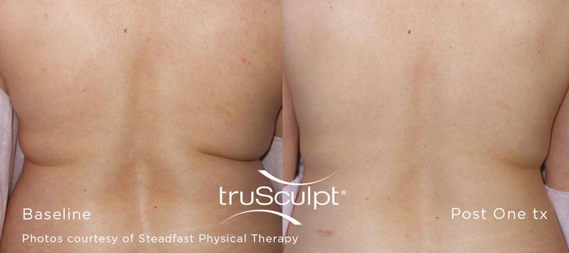 body contouring, trusculpt