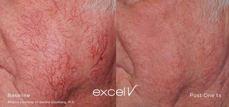 vein treatment, excel v