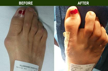 Photo Gallery Bunion Surgery Tarzana Ca