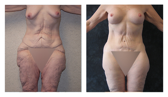 Breast lift after 300 pound weightloss