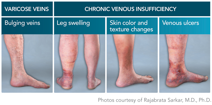 About Varicose Veins  Riverside, Ca. Window Signs Of Stroke. Canine Body Signs. Wooden Door Signs. Heartworms Signs. Noise Signs Of Stroke. Cumulonimbus Cloud Signs. Start Signs Of Stroke. First Aid Signs Of Stroke