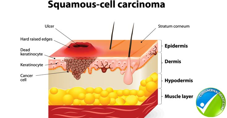 squamous cell carcinoma - when should you worry?: pine belt, Human Body