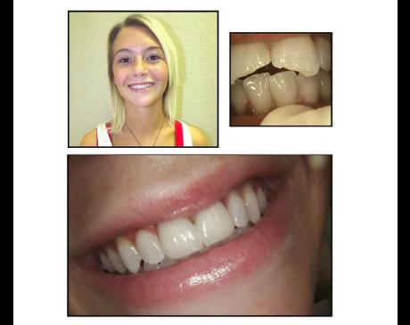 Dentistry In Frisco