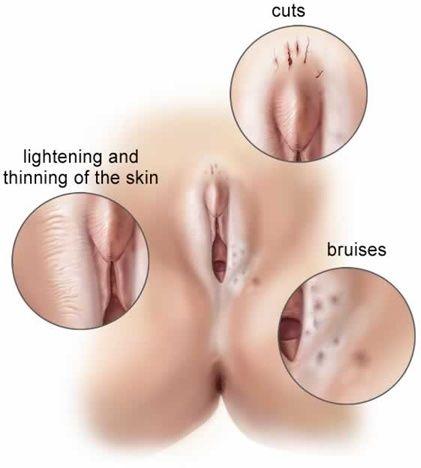 Vulva hidradenitis Burning