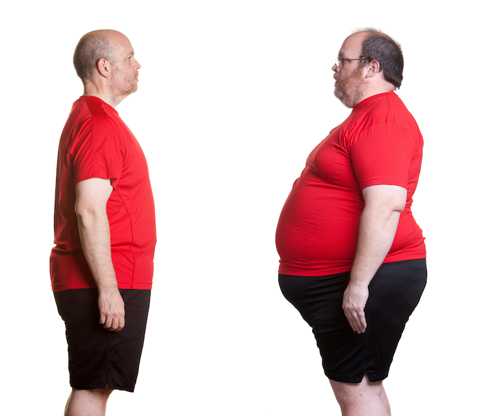 weight loss, physician assisted, customized plan, lap band